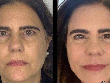 Longe da TV há 12 anos , Mayara Magri faz harmonização facial e mostra antes e depois